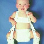 поза жабче, крачета на новороденото, Бебе с каишки за лекуване на дисплазия на тазобедрените стави (Снимката е предоставена от massgeneral.org)